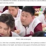 """原因不明の奇病で""""おじいちゃん""""に見える18歳高校生(中国)"""