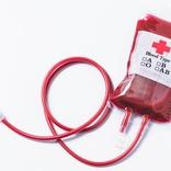 血液クレンジングは「意味ねえよ」 高須院長が効果を否定 美容医療として取り入れる芸能人も