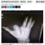毒ヘビに噛まれた指を慌てて切り落とした男性 「その必要はなかった」病院スタッフ(中国)