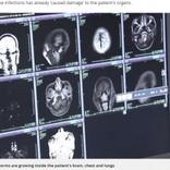 男性の脳や肺などから700超の寄生虫 火鍋の豚肉が原因か(中国)