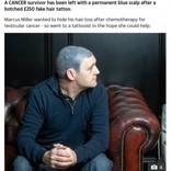 がん治療で髪を失った男性、ヘアタトゥーで頭部が青いヘルメットのように(スコットランド)
