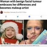 顔に腫瘍がある27歳女性、大好きなメイクで動画配信「本当の美しさとは…」(米)