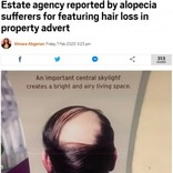 脱毛症を揶揄か 「天窓は明るく…」不動産会社の広告に非難殺到(英)