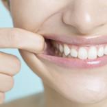 歯並びが急に悪くなる原因と対処法を専門医が解説