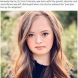 「施設へ…」と言われたダウン症の少女がトップブランドのモデルに(米)