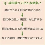 見逃してしてませんか、目の健康(3)緑内障ってどんな病気?