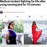 18歳女性 日焼け用ベッド15分で身体の80%に熱傷 医師「生きたまま油で揚げられたような状態」(露)