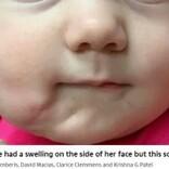 120年で症例35件 2つの口を持つ赤ちゃん、切除手術が成功(米)