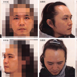 【劇的に別人】薄毛がAGA治療を始めて半年経ったらこうなった! ビフォーアフター写真を徹底比較!!
