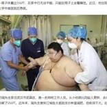 自宅待機中の5か月で100キロ太り、280キロになった26歳男性(中国)