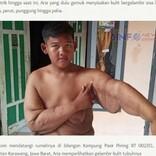 元・世界一の肥満児、腕の皮膚を切除し「過去の自分は恥ずかしくない。前に進むだけ」(インドネシア)<動画あり>