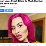 フィラー注入で顔からはみ出るほどの頬を持つ女性「周りの声は気にしない」(ウクライナ)