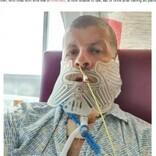「歯医者は嫌」27年間も拒み続けた男性 腫瘍が見つかりアゴを90%切除(英)