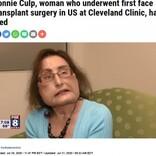 米国初の顔面移植手術を受けた女性が死去 「心が美しい人だった」と医師<動画あり>