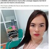 浮気の報復か 見知らぬ男に接着剤入りの帽子を被せられた女性、頭皮を火傷(スペイン)