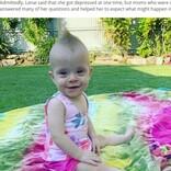 身体の1.5倍の腫瘍を抱え「死産の可能性が高いから中絶を」と言われた赤ちゃんが1歳に(豪)