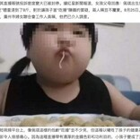 3歳で体重38キロ超、動画配信のため娘にジャンクフードを与え続けた両親(中国)<動画あり>