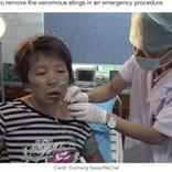 ハチに400か所以上刺された女性、針が残って引き抜く羽目に(中国)