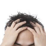 20~30代に増えている「コロナ抜け毛」、原因・対策を専門医に聞いた