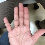 """乾燥肌かどうかは""""手のひら""""で分かる。保湿をサボると大変なことに"""
