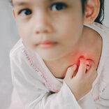 子どもの湿疹!症状別原因と対策【医師監修】