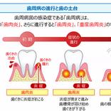 噛む力に課題!将来の歯の土台悪化リスクを予防するために改めたい生活習慣とは?