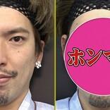 りんたろー。・オカリナ・磯野貴理子、最新美容整形「ハイフ」に挑戦