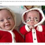 大きさが全く異なる一卵性双生児、困難を乗り越えて4歳に(英)