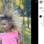 ライオンのたてがみのような髪を持つ「櫛でとかせない頭髪症候群」の5歳女児(米)