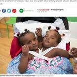「長くは生きられない」と言われた結合双生児、学校にも通い5月で5歳に(英)