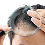 薄毛を隠すのは逆効果。ハゲでもイケてる髪形を作る方法