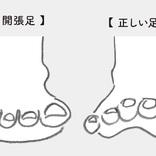 開張足、外反母趾、ウオノメ・タコ…足トラブルの予防&ケア法
