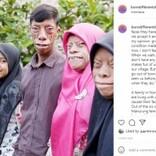 """顔が変形し""""呪われている""""と言われる家族「運命を受け入れて前向きに生きる」(インドネシア)<動画あり>"""