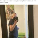 肥大した2つの腎臓が35キロと世界最大! 摘出手術を受けた54歳男性(英)