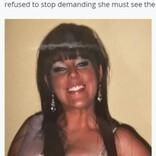 日焼けマシンを長年使い続けた女性が皮膚がんに「夫が命を救ってくれた」(スコットランド)