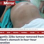 新生児3人分、45歳男性の腹部から巨大な腫瘍を摘出(印)